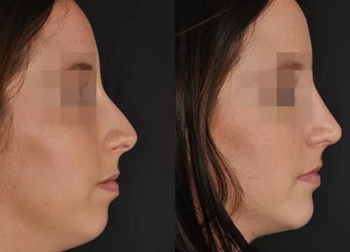 Chirurgie du visage Tunis