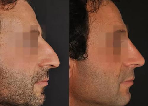 Chirurgie du visage clinique le bard