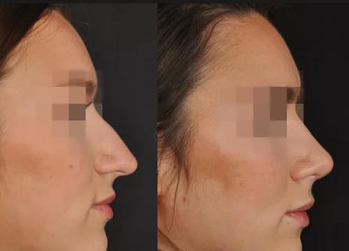 Chirurgie du visage clinique tunisie