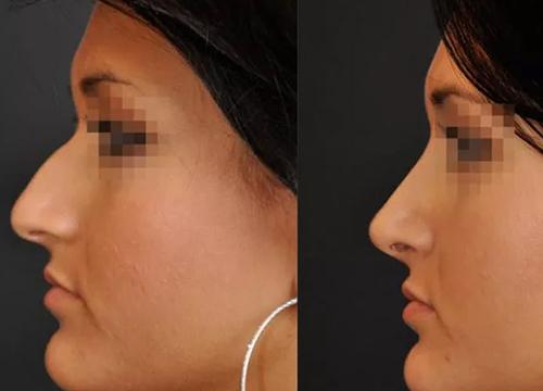 Chirurgie du visage clinique le bardo