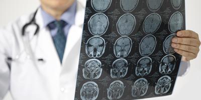 chirurgie cérébrale clinique le bardo