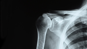 chirurgie de la main clinique le bardo