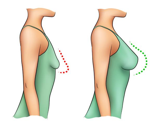 chirurgie esthétique des seins clinique le bardo