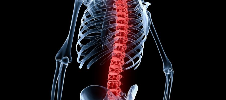 Comment réussir une arthrodèse lombaire en Tunisie ?